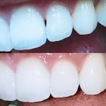 Whitening in Brooklyn